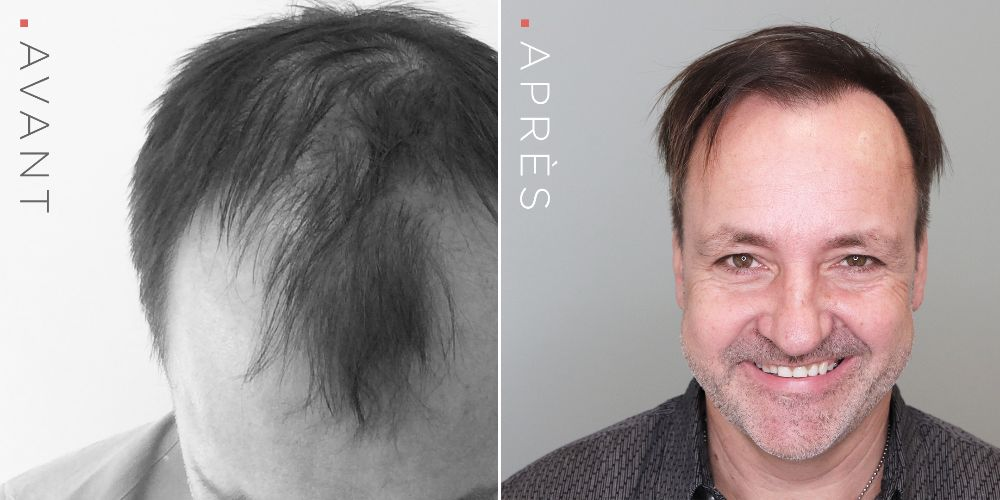 OK-greffe_cheveux2