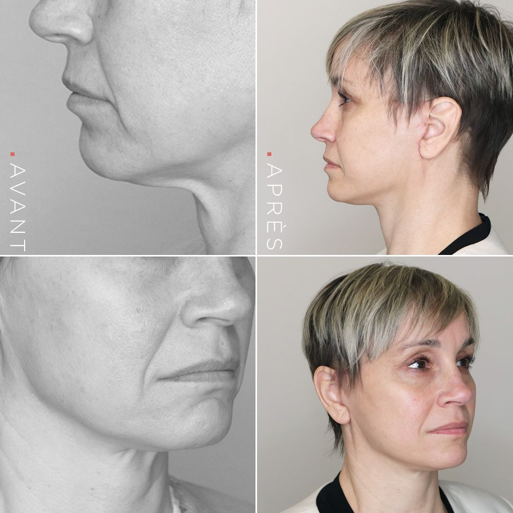 OKLifting-visage